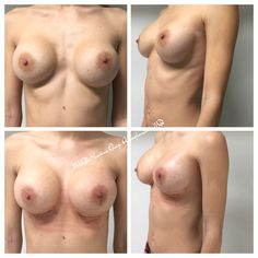 Breast modulation
