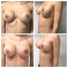 Breast modulation