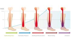 1. Venous insufficiency is a condition in which the veins have problems sending deoxygenated blood from the extremities back to the heart. Inadequate blood flow increases hydrostatic pressure within the venous system, leading to the failure of the venous valves which act to stop negative blood flow and the onset of venous stasis, when a large volume of blood accumulates in the lower extremities.  If this increased hydrostatic pressure is not treated, it leads to Chronic Venous Disease…