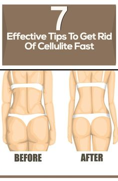 7 Effective Tips To Get Rid Of Cellulite Fast | WeLoveIt