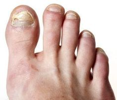Here is a quick guide to what toe nail fungus is and how you can get rid of them. Fungal nail infection treatment is now easy. #nailinfectiontreatment #nailfungus #fungalnailtreatment