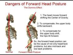 Forward head posture is very common these days...especially because we spend so much time looking down at our tablets, smart phones and computers.   #chiropractic #posture