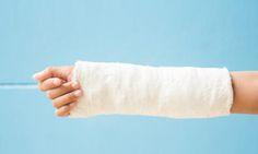 骨折怎樣儘快痊癒?中醫教你內外調養 | 中醫調養 | 整復技術 | 骨質疏鬆 | 大紀元
