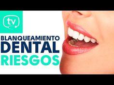 INFOPACIENTE: Todo sobre el Blanqueamiento Dental y sus riesgos ~ Directorio Odontológico