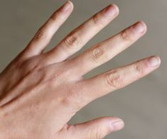 A Home Remedy for Cracked Cuticles & Dry Handsthumbnail