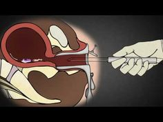 In this video, Dr. Anthony Levatino describes how a Trimester Abortion works, using Abortion Pills. Levatino has performed over abortions in his career. He doesn't do them anymore and is now pro-life. Pregnancy Memes, Pregnancy Months, Ovulation Calculator, Margaret Sanger, First Trimester, Life Choices, Pro Life, Live Action, Pills