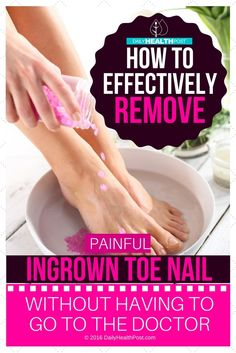 How to Effectively Remove a Painful Ingrown Toenail WITHOUT Having To Go To The Doctor via @dailyhealthpost