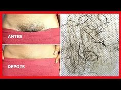 In this video i will share with you In just 5 minutes how to remove pubic hair easily at home. Pubic hair removal isn't a big issue, If you apply this home r. Pubic Hair Removal, Natural Hair Removal, Natural Hair Styles, Permanent Hair Removal, Remove Public Hair, Private Parts, Hair Serum, Peeling, Skin Whitening