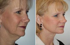 How Do Facial Gymnastics Exercises Work And What Regions Of The Face And Neck Do They Treat?