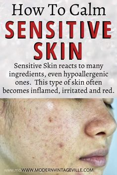 Best Skin Care Routine, Skin Care Tips, What Causes Warts, Warts Remedy, Warts On Face, Get Rid Of Warts, Skin Moles, Skin Growths, Skin Detox