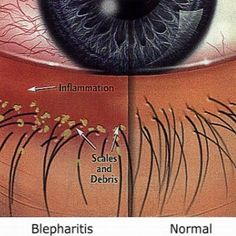 Natural Cure for Blepharitis                   -Gritty sensation in the eyes, crusting or loss of eyelashes.