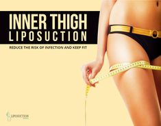 If you are looking forward to getting rid of the extra fat in your inner thigh a - HHarris Thigh Liposuction, Inner Thigh, Keep Fit, Looking Forward, Thighs, Korea, Fitness, Stay Fit
