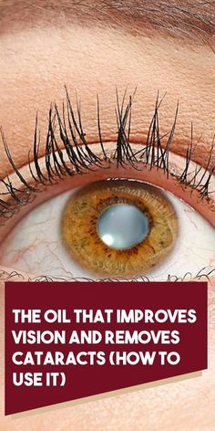 The Oil That Improves Vision and Removes Cataracts (How to Use It) - Organic Remedies Tips Natural Remedies For Arthritis, Natural Remedies For Anxiety, Cold Home Remedies, Holistic Remedies, Natural Health Remedies, Natural Cures, Natural Healing, Homeopathic Remedies, Natural Skin