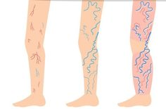 Natural Remedies For Varicose Veins A Simple Naturall Recipe to Say Goodbye to Varicose Veins!Veins are typically identified as being varicose when they are enlarged and appear as bluish or - Varicose Vein Remedy, Varicose Veins, Tighter Skin, Postpartum Belly, Cellulite Remedies, Natural Home Remedies, Natural Treatments, Simple Way, Natural Health