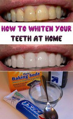 Natural Teeth Whitening, Whitening Kit, Home Remedy Teeth Whitening, Skin Whitening, Make Teeth Whiter, Clean Teeth, Healthy Teeth, Healthy Habits, Tips Belleza