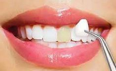 Fractured teeth? Don't worry URBN Dental Houston clinic offers best cosmetic dentistry services at an affordable price. Our dental office provides painless family dentistry services in Highland Village and Bellaire, Texas. Veneers Teeth, Dental Veneers, Dentist Near Me, Best Dentist, Best Mouthwash, Porcelain Veneers, Dental Cosmetics, Dental Laboratory