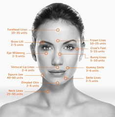 botox injection sites diagram google search beauty pinterest botox injection sites. Black Bedroom Furniture Sets. Home Design Ideas