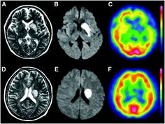 New Hopes of Recovery for Those With Cerebrovascular Accidents - Rewordit
