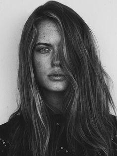 Freckle mania...