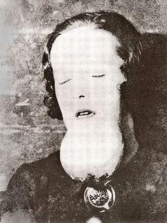 Una de las mujeres con un tumor en la mandíbula.