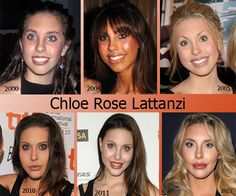 Check out the gradual transformation of Chloe Rose Lattanzi (singer & actress), daughter of Olivia Newton-John and actor Matt Lattanzi. What do you think? #singer #actress #celebrity #transformation #chloeroselattanzi #beforeandaftersurgery #plasticsurgery  #PSHub #plasticsurgeryhub