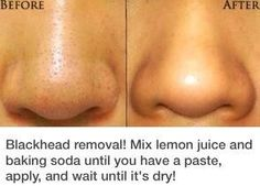 Blackhead removal. Could use lemon essential oil for this.