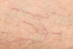 Unter Besenreiser versteht man winzige, erweiterte Venen, die sich meist dunkelrot oder violett an der Hautoberfläche der Beine bemerkbar machen. Sie sind lästig, können brennen und sind nicht sehr schön. Manche lassen Besenreiter chirurgisch entfernen, doch es gibt auch ausgezeichnete Naturmittel, die bei diesem Problem helfen können. In diesem Artikel erfahren Sie mehr darüber.