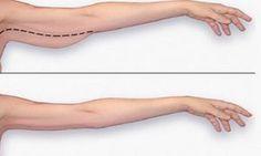 Voici la meilleure façon de perdre votre gras de bras! Ne tardez pas!