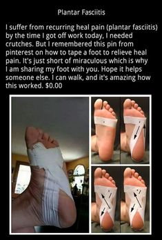 Natural pain relief from plantar fasciitis. Betalain supplement that is completely sourced from beets because batalains have been shown to reduce inflammation the… Facitis Plantar, Plantar Fasciitis Exercises, Plantar Fasciitis Treatment, Taping For Plantar Fasciitis, Plantar Fascitis Relief, Health And Beauty Tips, Health And Wellness, Health Tips, Health Fitness