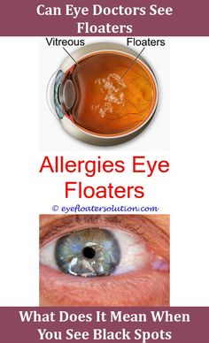 How to get rid of eye floaters naturally at home