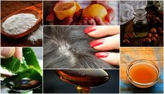9 Best Home Remedies To Get Rid Of Dandruff For Good