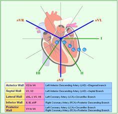 Little Baby Nurse — ccrnhustle: 12 Lead EKG Changes in MI by. Nursing School Notes, Medical School, Nursing Schools, Diálisis Peritoneal, Ekg Interpretation, Np School, School Tips, Cardiac Nursing, Pharmacology Nursing