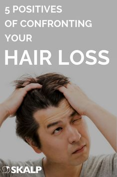 So, you're confronting your hair loss, or rather perhaps you're completely avoiding facing up to hair loss altogether, as many sufferers do. However in today's world the hair loss landscape has… Excessive Hair Fall, Excessive Hair Loss, Causes Of Hair Fall, Hair Growth Cycle, Hair Starting, Hair Loss Women, Hair Loss Remedies, Prevent Hair Loss, Hair Loss Treatment