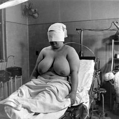 Alfred Eisenstaedt - Breast & Plastic Surgery, Park East Hospital. 1944