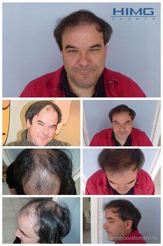 Kálloy Molnár Péter - 4500 hajszál beültetése - HIMG Klinika  A művész úr 4500 hajszál beültetését egy nap alatt végezte el a HIMG Klinika.  http://hajgyogyaszatszeged.hu/