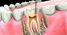 Why Root Canals Are Dangerous