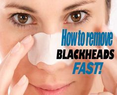 How to remove blackheads FAST!