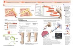 Rinitis alérgica | Clínica Universidad de Navarra