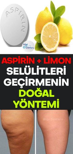 Aspirin-Zitronensaft-Heilung, die Cellulites führt - Güzellik ve Bakım - # Aspirin, Herbal Remedies, Natural Remedies, Flu B, Nasal Congestion, Love My Body, Healthy Beauty, Health Care, Healing