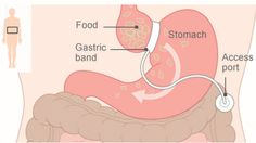Gastric band for morbid obesity. Lose weight before you reach this stage. www.ideaas.eu