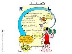 Left CVA