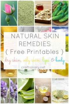 Natural skin remedies free printables for each skin type. Choose the one that suits you and print to keep as a reminder! Super easy ingredients easily available at home.