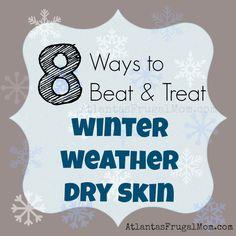 8 Ways to Beat & Treat Winter Weather Dry Skin