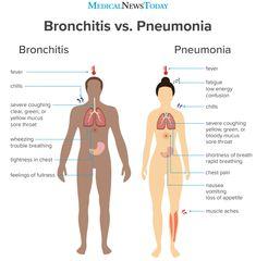 Image Credits: Medical News Today Bronchitis vs Pneumonia Medical Facts, Medical News, Medical Information, Medical Science, Nursing School Notes, Nursing Schools, Medical School, Pediatric Nursing, Nursing Tips