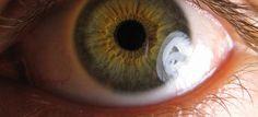 Gözbebeğinin dışında, göze renk veren pigmentleri içeren zarın adı iristir. İris, gözbebeğine giren ışık miktarını ayarlayan kaslı bir yapıdır. Parlak ışıkta küçülür, loş ışıkta büyür. İrisin iltihaplanmasıyla oluşan hastalığın adı gözbebeği iltihabıdır ve genellikle genç erişkinlerde görülen bir hastalıktır. Gözbebeği iltihabı çok hızlı gelişir... #gozbebegi #gozbebegiiltihabi #goz #gozsagligi #saglik #bingosaglik