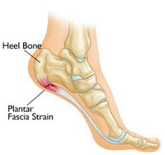 Plantar Fasciitis and Bone Spurs-OrthoInfo - AAO Includes anatomy, causes, symptoms, treatment, etc.