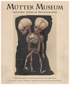 Visit the Mutter Museum in Philadelphia. It is one of the leading museums of medical history in the USA. The museum boasts with a collection of antique medical equipment, wax models, pathological and anatomical specimens and medical oddities. Medical Photography, Conjoined Twins, After Life, Medical History, Science Books, Paranormal, Funeral, Artsy, My Books