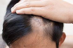 6 φυσικές θεραπείες για την αλωπεκία