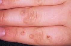 The parents of an 11 year old tried everything to get rid of warts.   A dermatologist cut some and froze others.  They tried every wart medicine.  Finally they started giving her Optiflora by Shaklee.  Within one month the warts started to shrink.  Now three months later the last wart is almost gone.  Optiflora improved her digestive track and helped her body get rid of the virus that was keeping her from getting well.