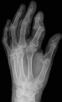 X-ray of a dislocated finger
